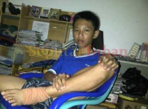 Michael Eka Juanda, kondisi kakinya masih bengkak akibat terjatuh karena kedua kakinya terikat saat dihukum wali kelasnya bersama 19 teman lainya selama sepekan