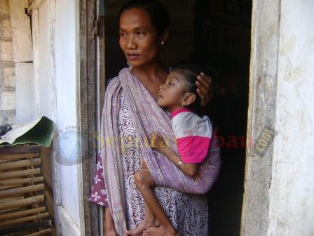 KETERBATASAN BIAYA : Kondisi Luluk tiap hari harus digendong ibunya, karena lumpuh