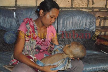 Tuban - Balita penyakit komplikasi