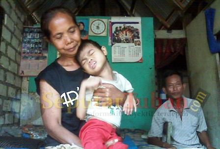 anak buruh tani menderita polio